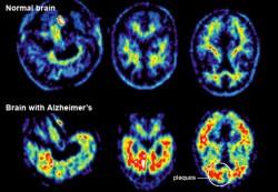 advances-in-treating-alzheimers-af