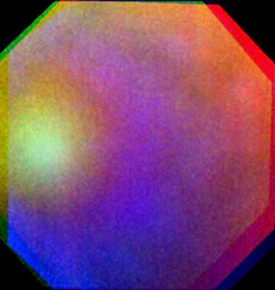 Venus_glory_large-550x580.jpg